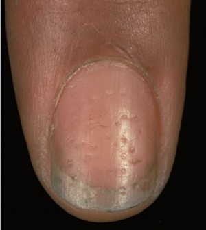 A Nail Is Basically An Endage That Grows Out From The Skin At Tips Of Fingers And Toes When It Comes To Diseases Nails Have Their Own Specific Set