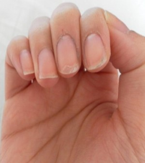 Beautiful Well Groomed Nails Enhance The Beauty Of Hands On Other Hand Brittle Chipped Flaky And Ling Are Not Liked By Anyone