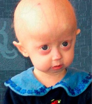 the genetic disease progeria essay Currently there is no cure for progeria although scientists hope to reverse the disease in the future currently there is no cure for progeria  genetic testing.