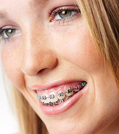 Adult braces teeth